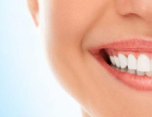 Quali sono i cibi che macchiano i denti