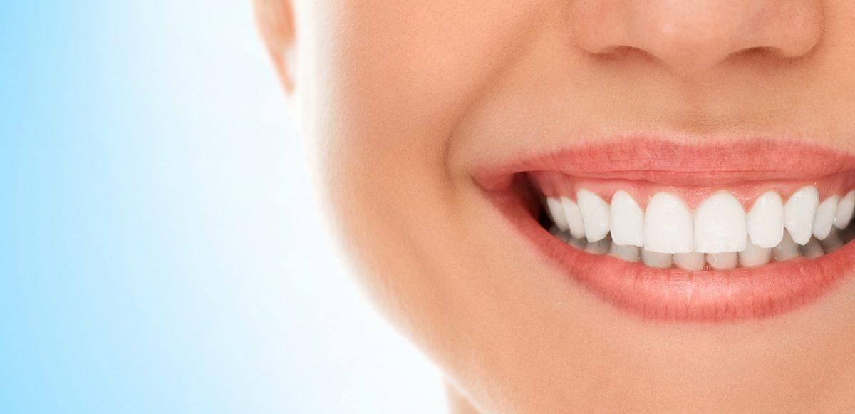 donna sorride cibi che macchiano i denti