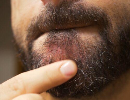 Dermatite barba e sopracciglia: che cos'è e come liberarsene