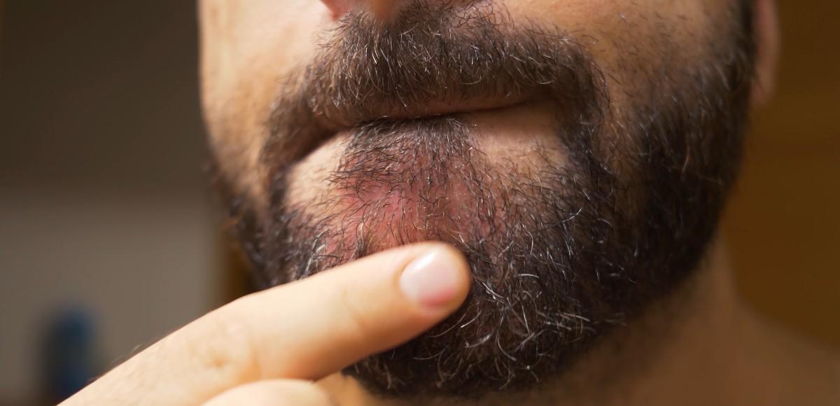 dermatite barba sopracciglia